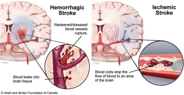 stroke_hem_iso